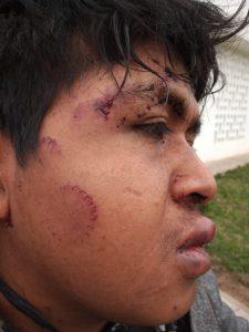 Así quedó el rostro del joven golpeado